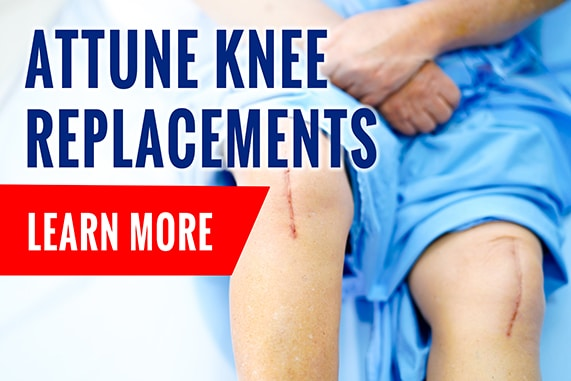 Attune Knee Replacements